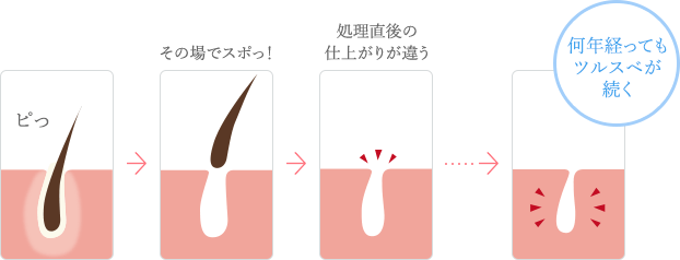 肌の断面図イメージ